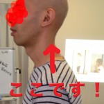 顎が上がる人の 頚椎上の特徴とは?
